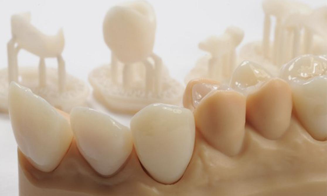 Stomatologie tech: dinți realizați prin fabricare aditivată și multe altele